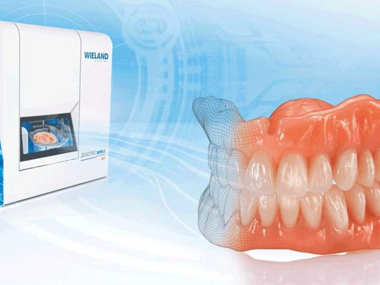 digitally generated denture